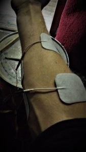 elektrostimulatie elektroden