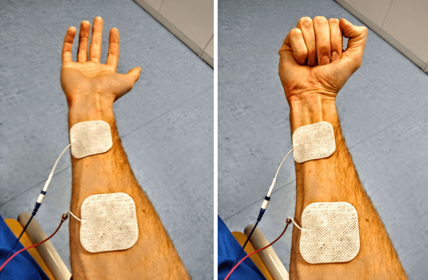 electrical stimulation open close hand